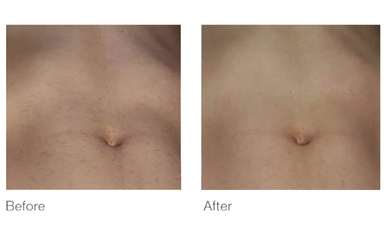 belly hair removal in columbus