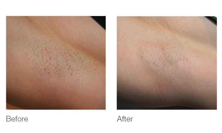 laser hair removal in central ohio