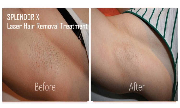 splendor x laser hair removal
