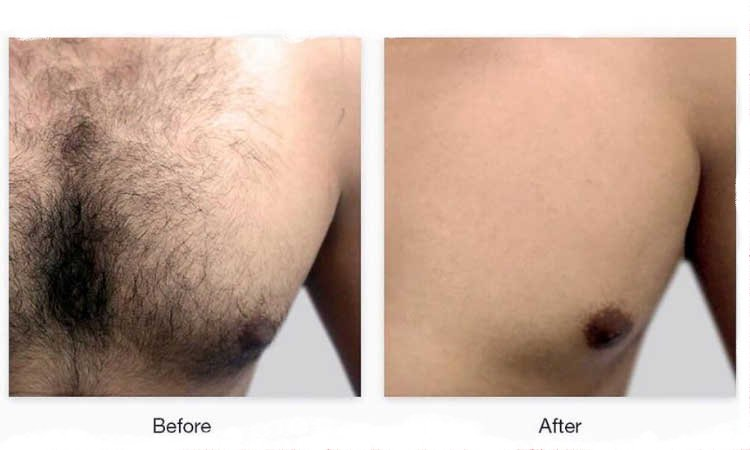 chest hair removal