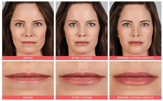 juvederm ultra results image